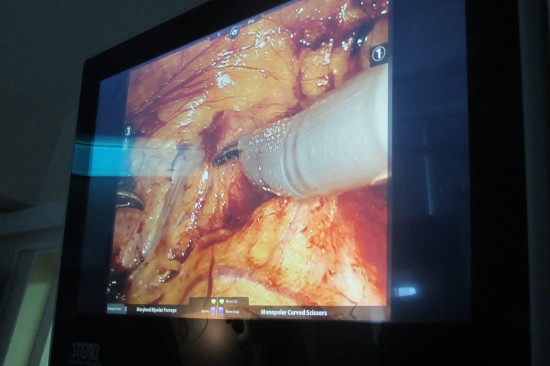 Робот-хирург «Да Винчи» в центре «Здоровье» . Фото: Галина Пилипенко